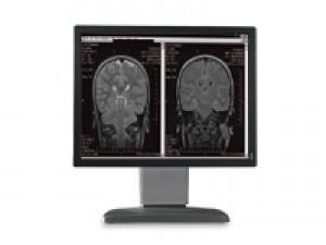 Coronis 2MP diagnostic monitor
