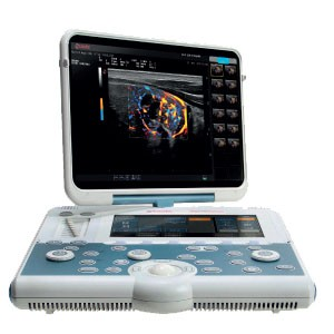 MyLab™Gamma Portable Ultrasound