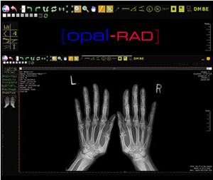 Opal-RAD Software