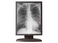 CORONIS ® 3MP Diagnostic Monitor