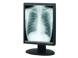 LDM-DM20 2MP Grayscale Radiology Display