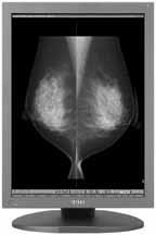 ME551i2 Mammography Display