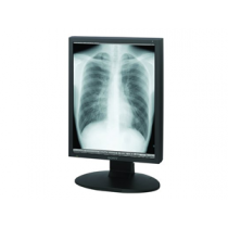 LDM-DM20 2MP Grayscale Radiology Display