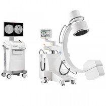 VISION R C-ARM - MOBILE FLUOROSCOPY